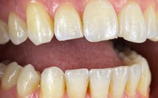 After - Westwood Dental Practice