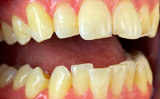 Before - Westwood Dental Practice